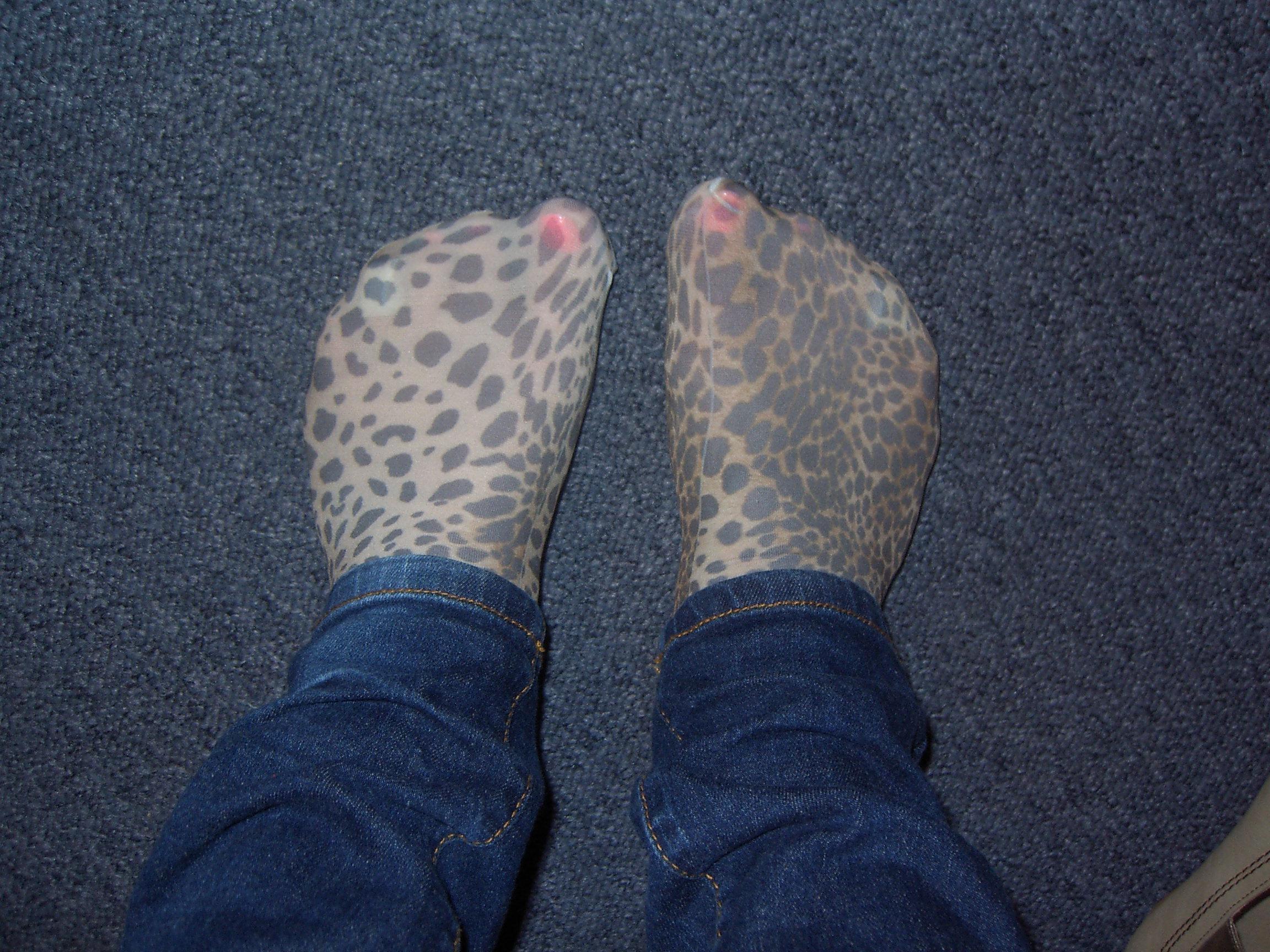 brune pletter på fødderne